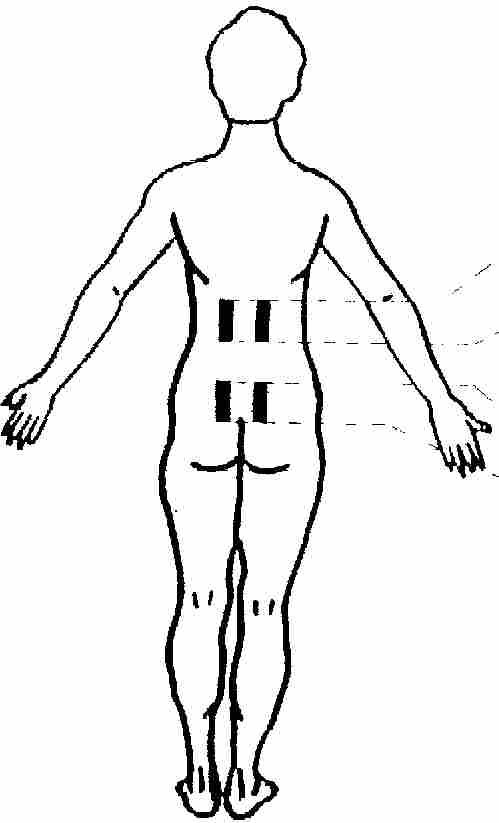 Tens Unit Pad Placement for Back Pain